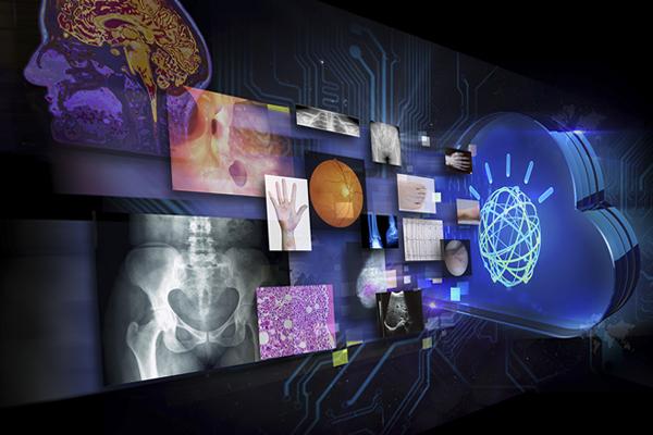 система IBM Watson Health