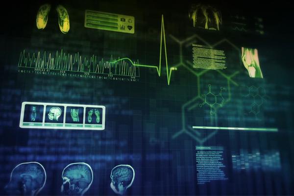 IBM Watson - когнитивная система