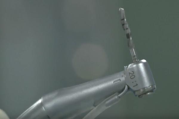 Робот-стоматолог провел операцию без помощи человека