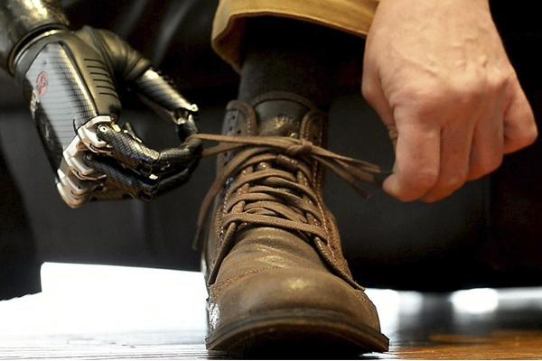 как работают бионические протезы